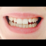 Dents après