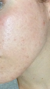 peau après nigelle