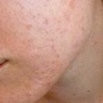 peau avant nigelle